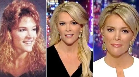 megyn kelly nose job plastic surgery haircut