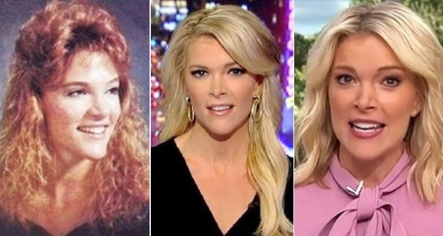 megyn-kelly today show nose-job-plastic-surgery-haircut