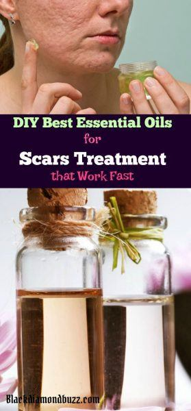 DIY Best Essential Oils for Scars Treatment that Work Fast