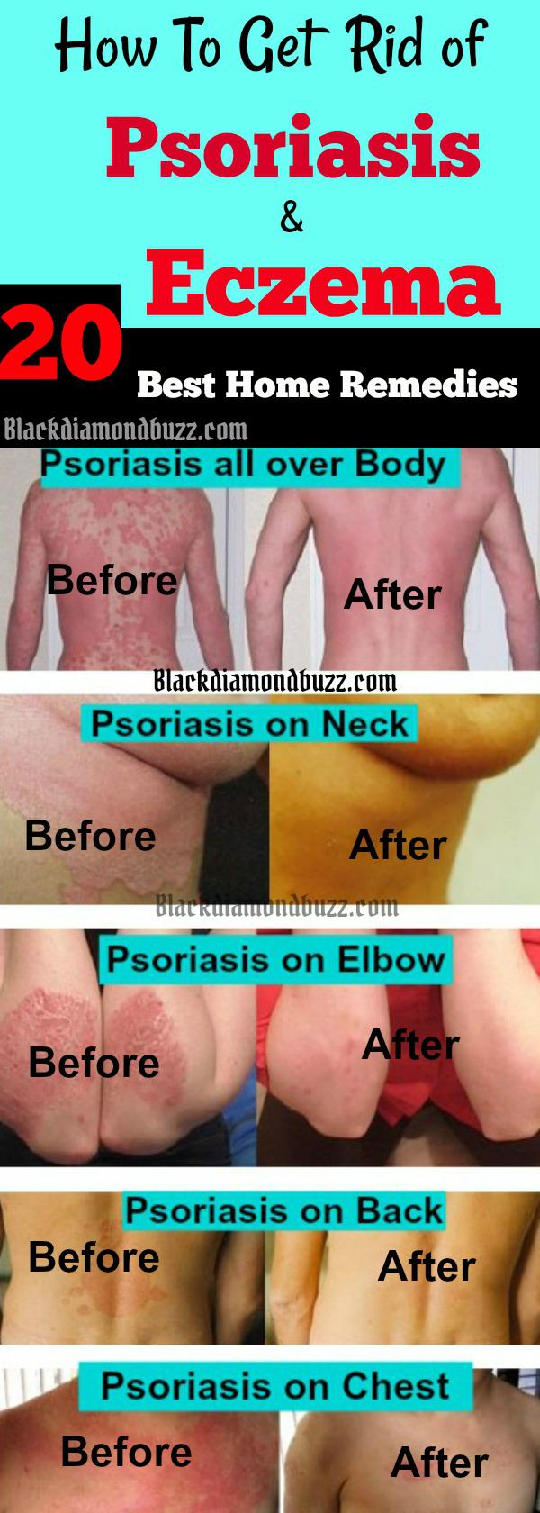 20 Best Home Remedies For Psoriasis and Eczema That Work