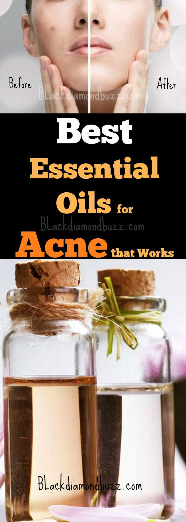 Essential oils for Acne and Pimples