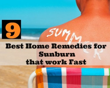 Best Home Remedies for Sunburn that work Fast