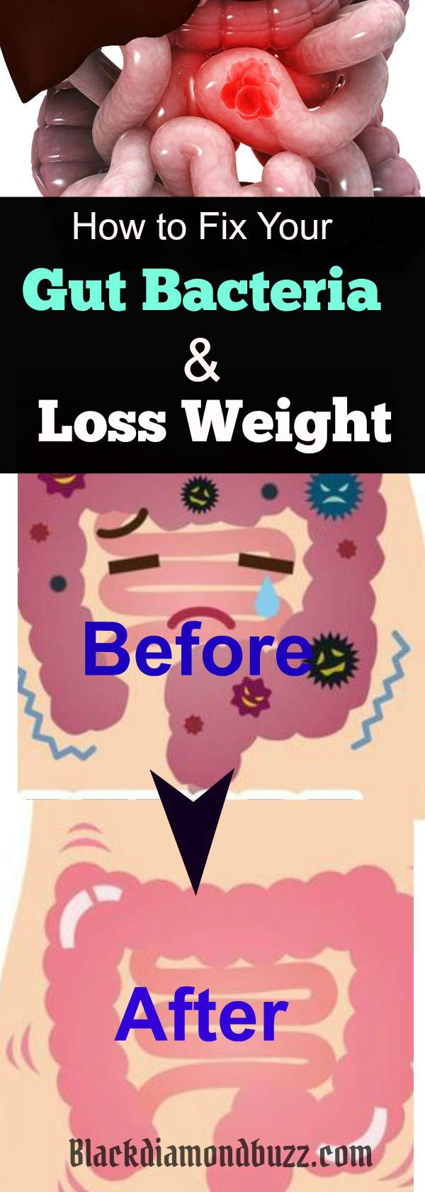 8 Best Ways to Increase Your Good Gut Bacteria and Weight Loss Naturally