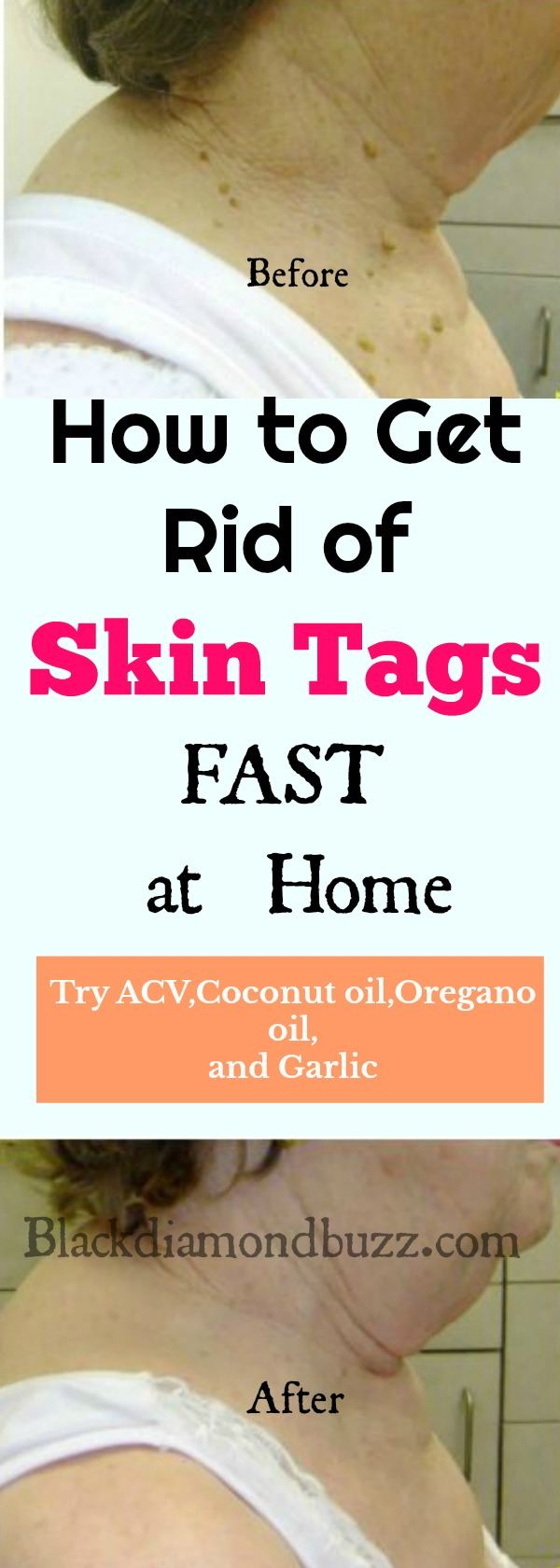 How to Remove Skin Tags Fast : Home Remedies and Causes of Skin Tags