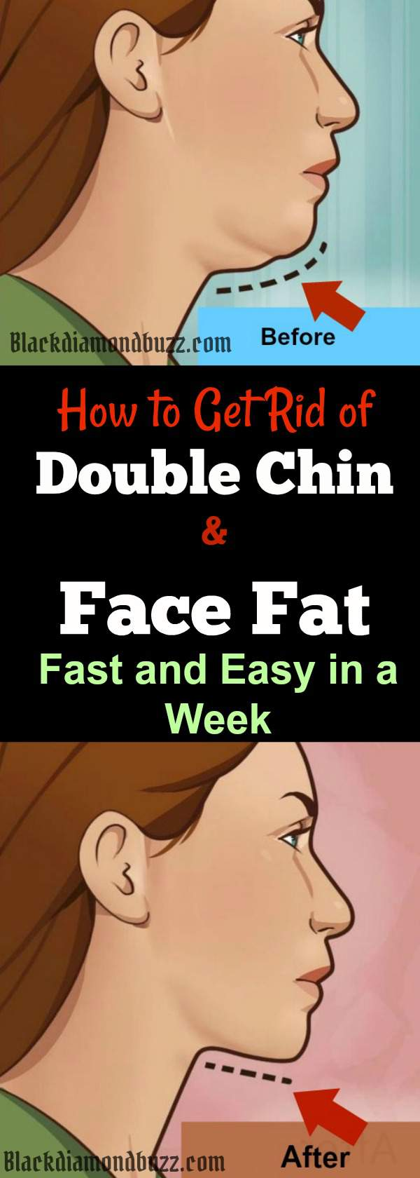 How to Get Rid of Double Chin and Face Fat Fast and Easy in a Week