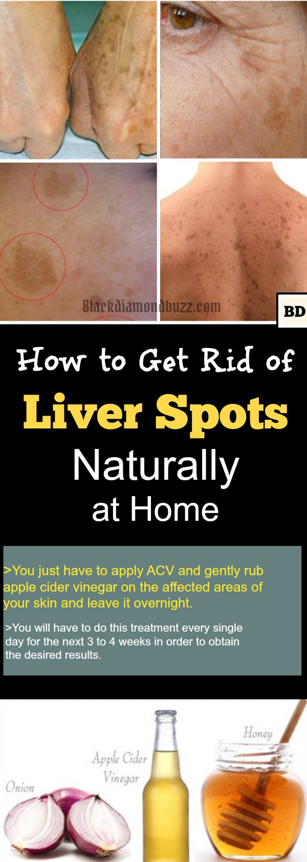 How to Get Rid of Liver Spots Naturally at Home