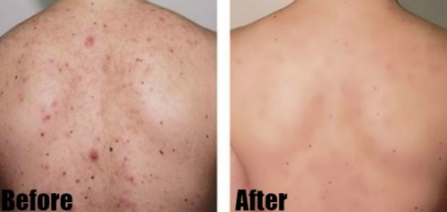 How to Get Rid of Back Acne Fast – 7 Best Home Remedies for Backne