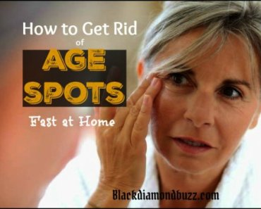 how to get rid of age spots fast at home__ Home remedies for dark age spots removal