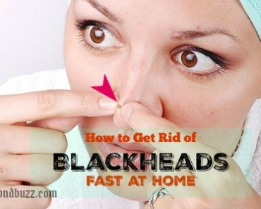 How to Get Rid of Blackheads Fast at Home | 10 DIY Best Home Remedies