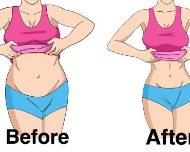 How to Lose Weight with PCOS and Insulin Resistance Naturally