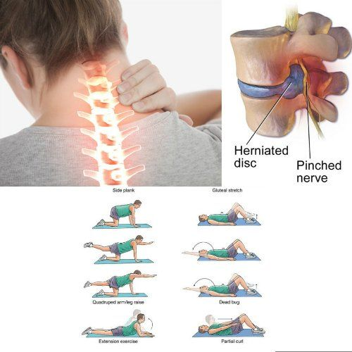 exercises for lower back pain relief pdf