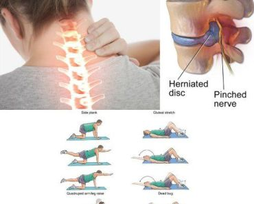 5 Herniated Disc Exercises for Fast Results- Lower Back Pain Relief
