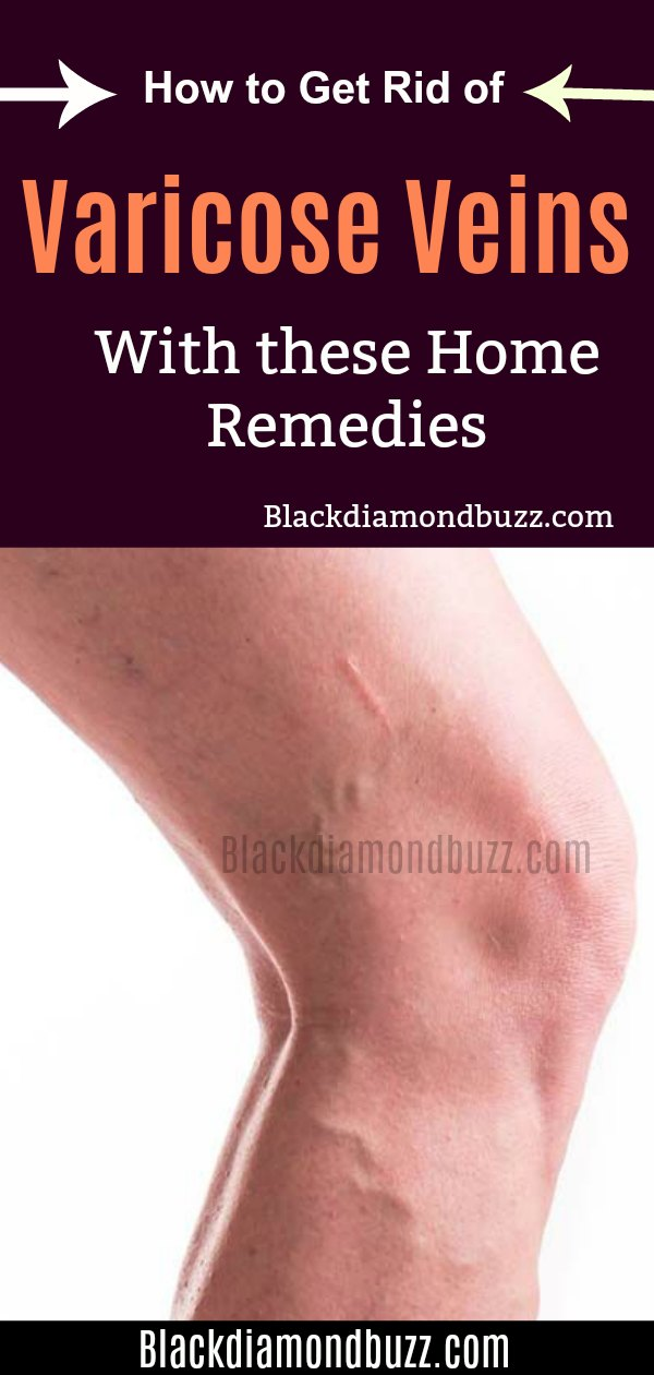 How to Get Rid of Varicose Veins Fast with Home Remedies That Work