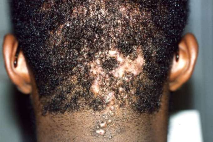 Hair diseases hairsstyles acne keloidalis nuchae urmus Choice Image