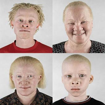 Black People With Albinism