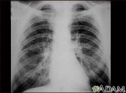X-ray Showing Simple CWP