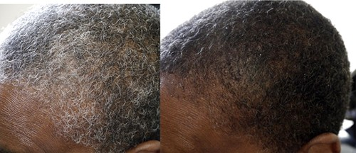 Scientific Discovery Reverses Gray Hair To Its Natural Color