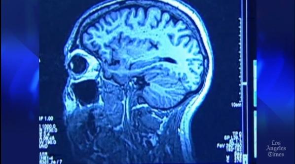 Blood-Sugar-Brain