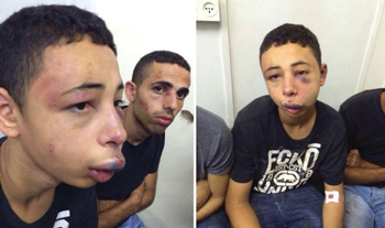 Tarek Abu Khdeir shows his injuries after being beaten by Israeli police.