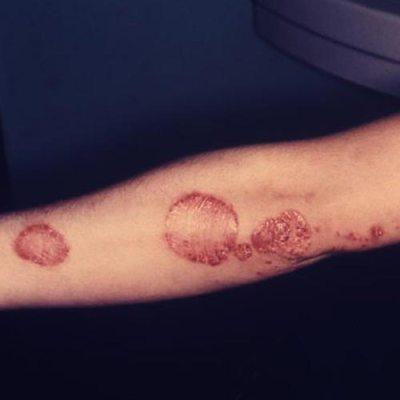 plaque-psoriasis