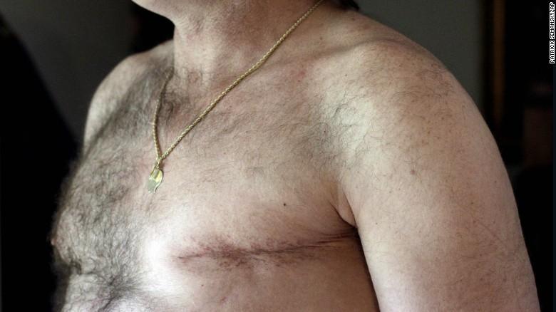 150903170021-male-breast-cancer-survivor—restricted-exlarge-169
