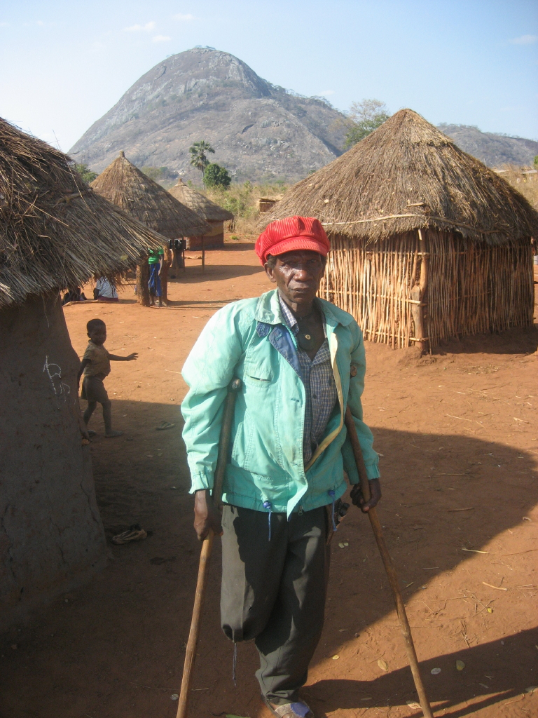 Pita Roque in Chuala, Mozambique, one of the many land mine victims in Mozambique. (Wikimedia Commons)
