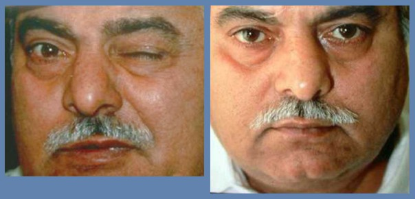 Blepharospasm Symptoms and Related Conditions