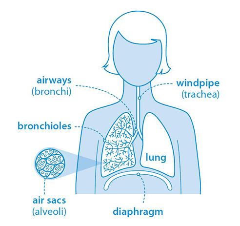 What is pneumonia? | British Lung Foundation