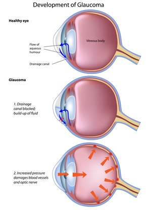 canine eye diagram right minn kota wiring manual what happens when your dog gets glaucoma? – faqs blind support: for owners of dogs