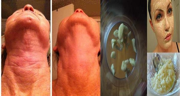 Odstranite bore na vratu za samo 7 dana