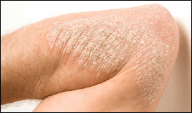 Psoriasis Cure In Ayurveda