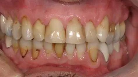 10 bonnes pratiques pour des dents saines