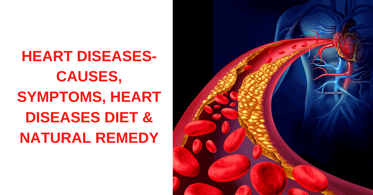 heart-diseases-causes-symptoms-heart-diseases-diet-and-natural-remedy