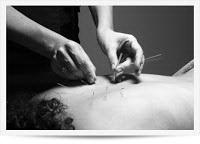 acupuntura doi duvidas