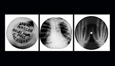 radiografia a Raggi X Roentgenizdat, the king of rock