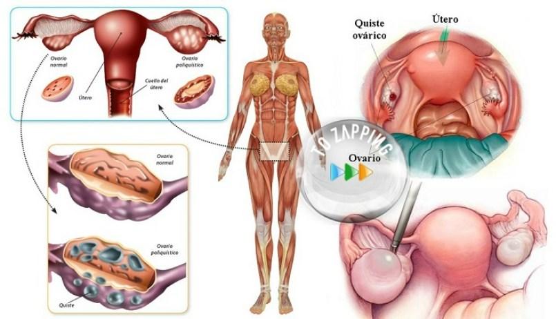 Ov Como se Produz a Menstruação e o Porquê das Dores