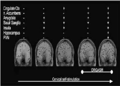 l-IRM fonctionnelle de l orgasme feminin