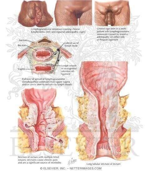 Lymphogranulomatose vénérienne chez la femme