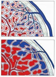 Compression des veines émissaires durant l'érection