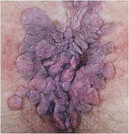 Papillomatose obstruant la voie génitale durant la grossesse