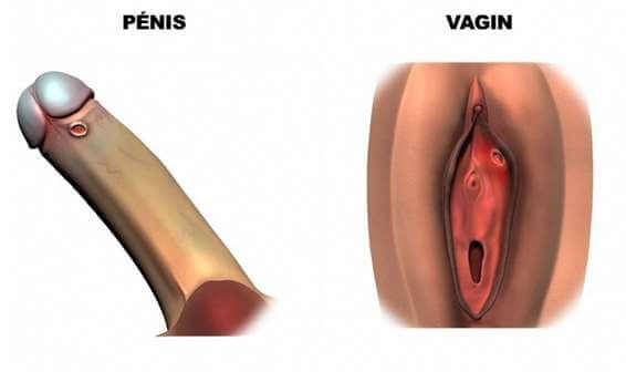 Ulcérations syphilis