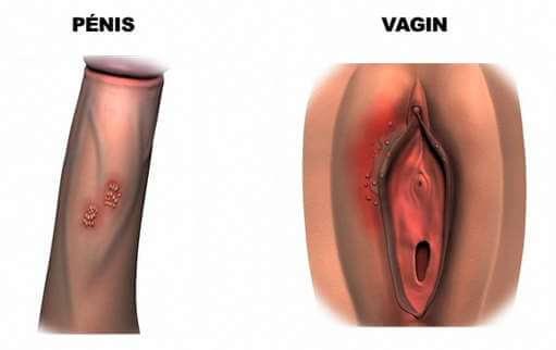 Ulcérations et vésicules herpétiques dans l'herpès génital