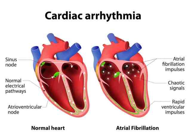 Arrhythmia Symptoms