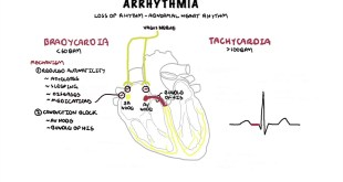 Signs & Symptoms Of Arrhythmia