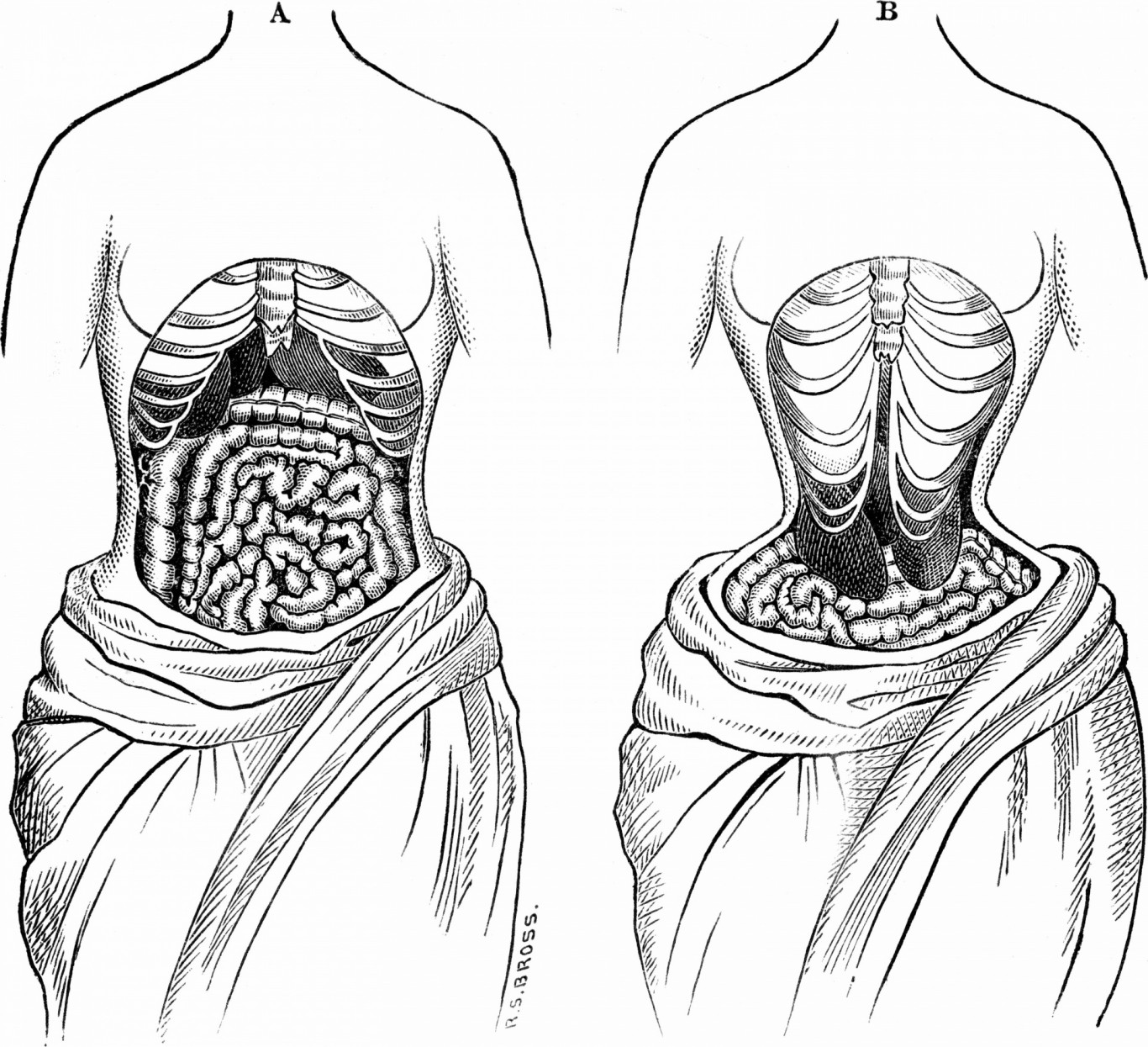 Are Waist Trainers Bad for you?