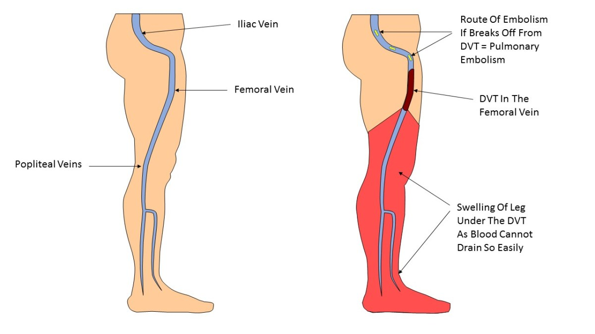 Deep Vein Thrombosis Symptoms And Treatment - How To -9706