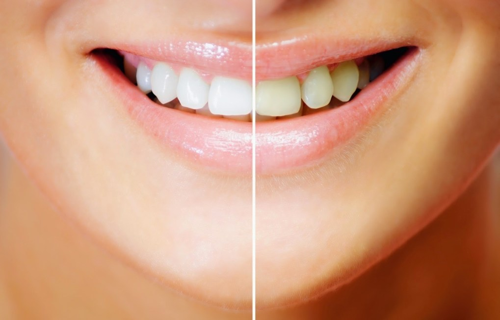 Natural Remedies Forth Whitening Teeth