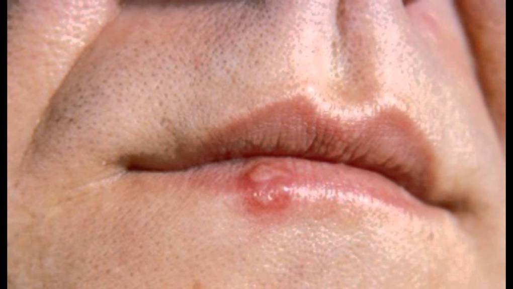 8 Natural Remedies For Cold Sores How To Treat Cold