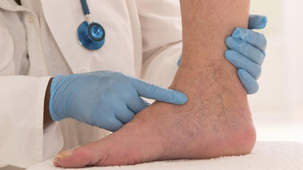 Top Natural Remedies For Varicose Veins