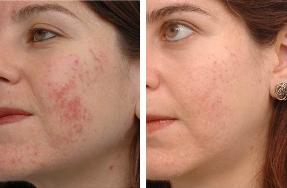 home-remedies-for-acne-scars-get-rid-of-acne-scars